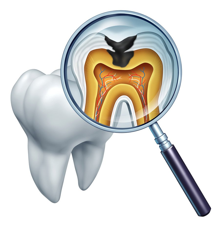 Dental Decay & Hemorrhagic Stroke