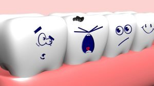 Stages of Dental Decay